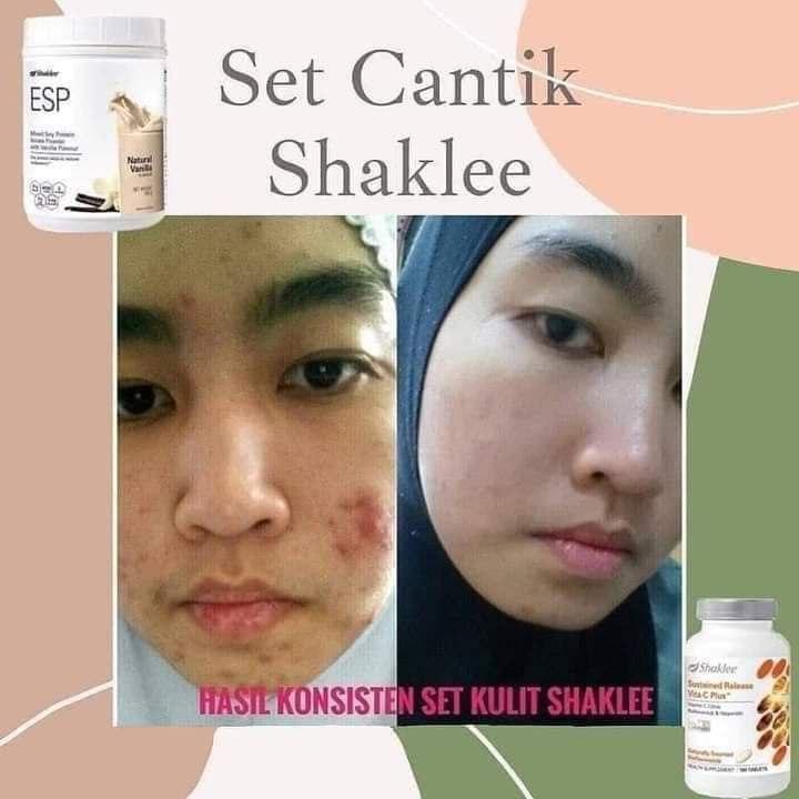 Kombinasi ESP dan Vitamin C Shaklee